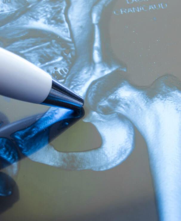 Arzt analysiert Röntgenbild